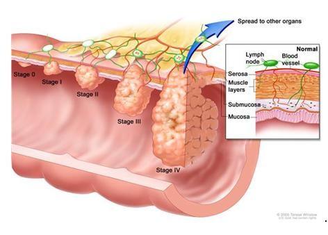 стадии-рака-кишечника